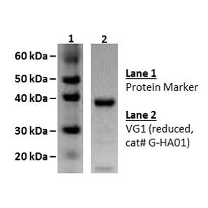 Versican G1, hyaluronic acid binding protein - Echelon Biosciences